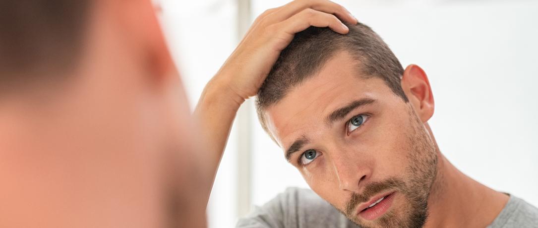 Alopecia androgenetica: come riconoscerla, la cura.