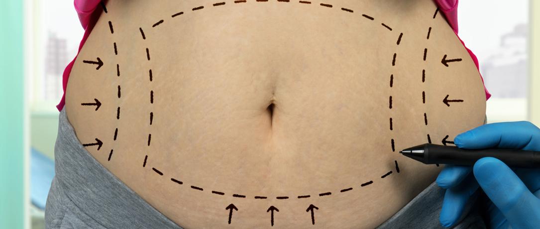 Diastasi addominale: cause e cure